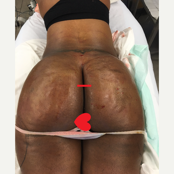 35-44 year old woman treated with Smart Lipo after 3624939