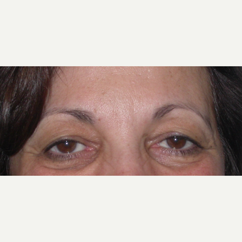 55-64 year old woman treated with Eyelid Surgery before 3070052