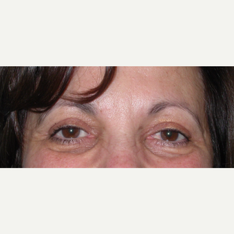 55-64 year old woman treated with Eyelid Surgery after 3070052