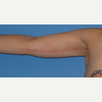 35-44 year old woman treated with Arm Lift after 2979260