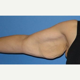 35-44 year old woman treated with Arm Lift before 2979260