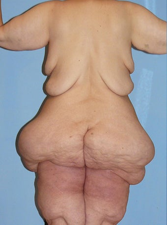 50 Year Old Female Extreme Makeover Body Lift 660118