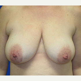 35-44 year old woman treated with Breast Lift before 3519965