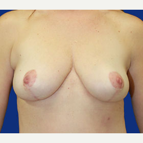 35-44 year old woman treated with Breast Lift after 3519965