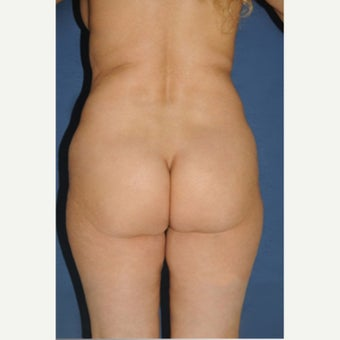 45-54 year old woman treated with Brazilian Butt Lift before 2233140