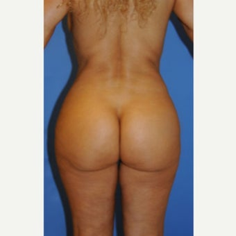 45-54 year old woman treated with Brazilian Butt Lift after 2233140