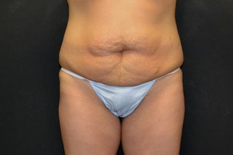 35-44 year old woman treated with Tummy Tuck before 1820806