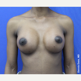 25-34 year old woman treated with Breast Augmentation after 3353310