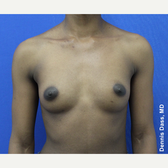 25-34 year old woman treated with Breast Augmentation before 3353310