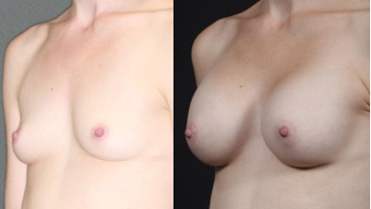 Mother, early 30s, breast augmentation with round 250cc after 1050492