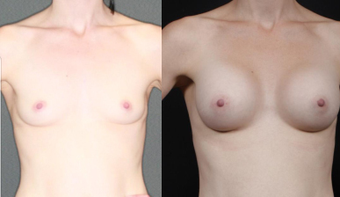 Mother, early 30s, breast augmentation with round 250cc before 1050492