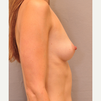 25-34 year old woman treated with Breast Augmentation before 3447905