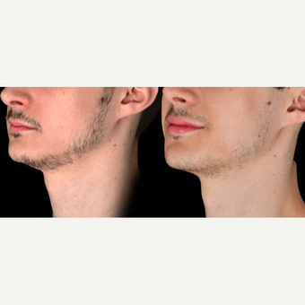 18-24 year old man treated with Lip Augmentation before 3220484