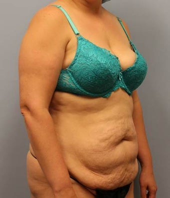 Tummy Tuck with Liposuction 2168079