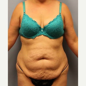 Tummy Tuck with Liposuction before 2168079