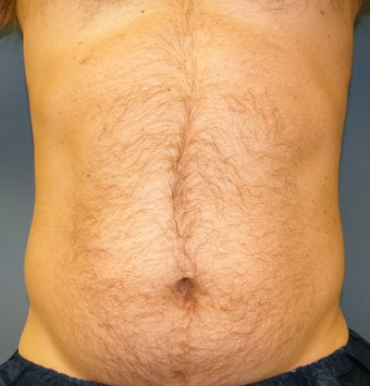 CoolSculpting before 879153