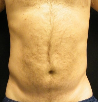 CoolSculpting after 879153