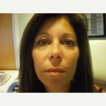45-54 year old woman treated with Restylane Lyft after 3076783
