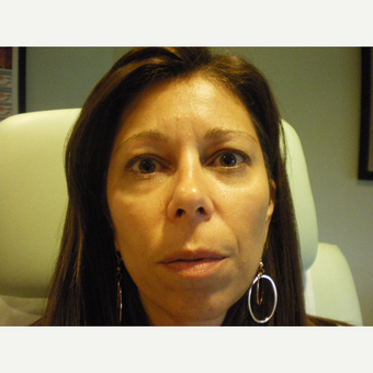 45-54 year old woman treated with Restylane Lyft before 3076783