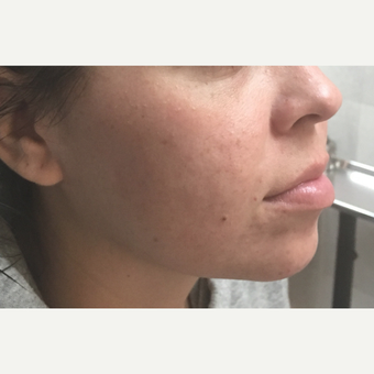 25-34 year old woman treated with Microneedling after 3775427