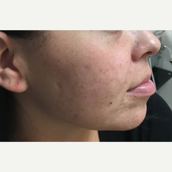 25-34 year old woman treated with Microneedling before 3775427