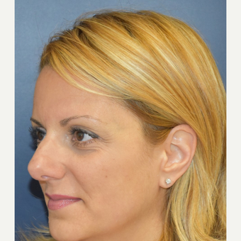 35-44 year old woman treated with Rhinoplasty before 3131246