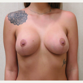 25-34 year old woman treated with Breast Lift with Implants after 3495354