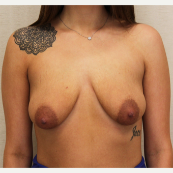 25-34 year old woman treated with Breast Lift with Implants before 3495354