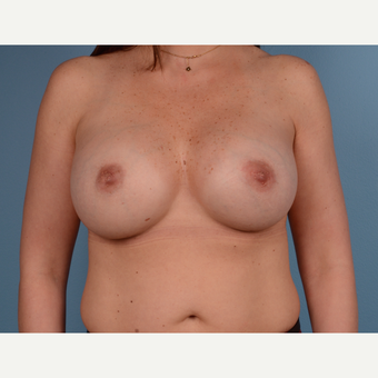 35-44 year old woman treated with Breast Augmentation after 3245321