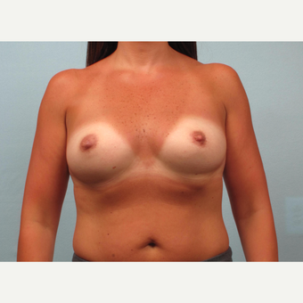 35-44 year old woman treated with Breast Augmentation before 3245321