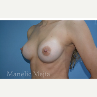 25-34 year old woman treated with Breast Augmentation after 3647374