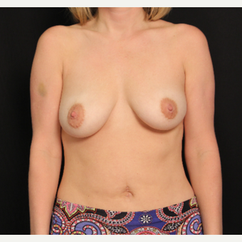 34 year old female with bilateral submuscular silicone implants placed through the underarm before 3576168