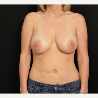 34 year old female with bilateral submuscular silicone implants placed through the underarm after 3576168