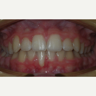 17 or under year old man treated with Braces after 3657323