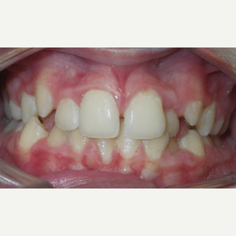 17 or under year old man treated with Braces before 3657323