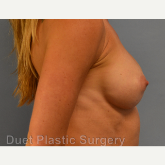 45-54 year old woman treated with Breast Augmentation after 3342143