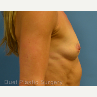 45-54 year old woman treated with Breast Augmentation before 3342143