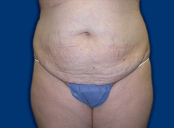 Tummy Tuck before 611074