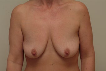 48 year old woman with breast droopiness