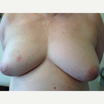 55-64 year old woman treated with Breast Reconstruction before 3629647