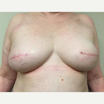 55-64 year old woman treated with Breast Reconstruction after 3629647