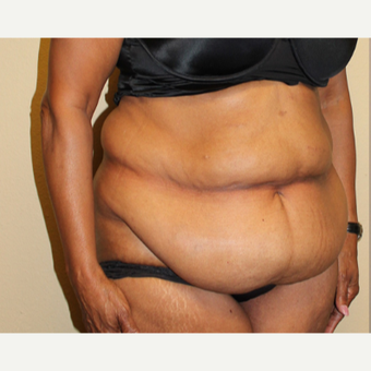 55-64 year old woman treated with Tummy Tuck before 3000724