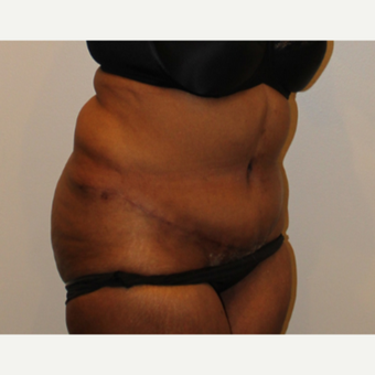 55-64 year old woman treated with Tummy Tuck after 3000724