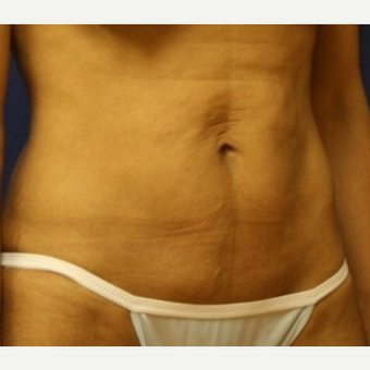 38 year old woman with a Tummy Tuck before 3103963
