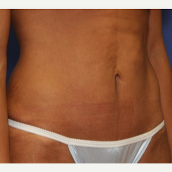 38 year old woman with a Tummy Tuck after 3103963