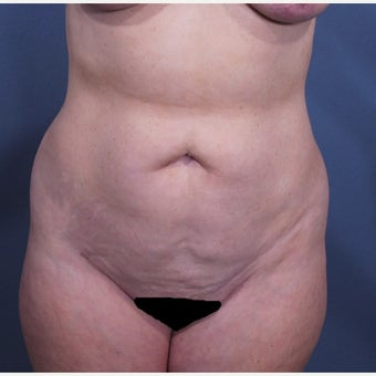 Liposuction before 2529812