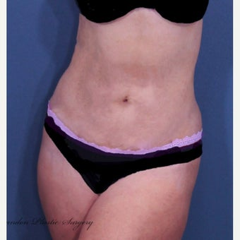 Liposuction after 2529812