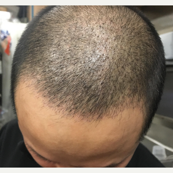 25-34 year old man treated with Hair Transplant before 3618770