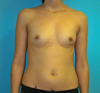 Breast Augmentation before 381693