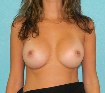 Breast Augmentation after 381693